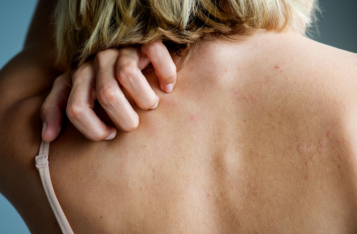 Backside-of-white-woman-back-pain-and-ache-concept-918812934_6587x4333